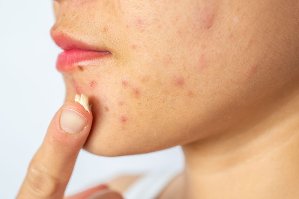 How to Find the Best Face Cleanser for Acne?